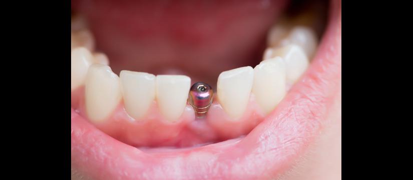 implantologie servicii 2