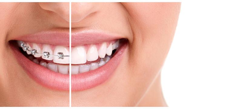 ortodontie servicii 1