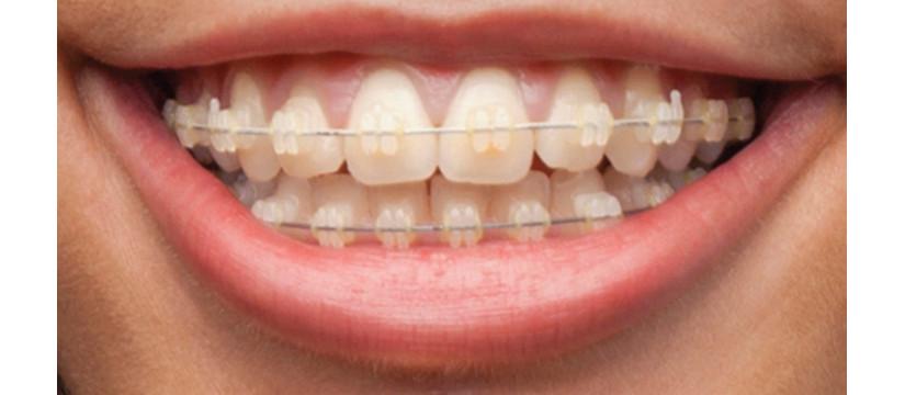 ortodontie servicii 2
