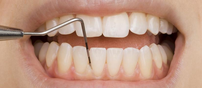 parodontologie servicii 1