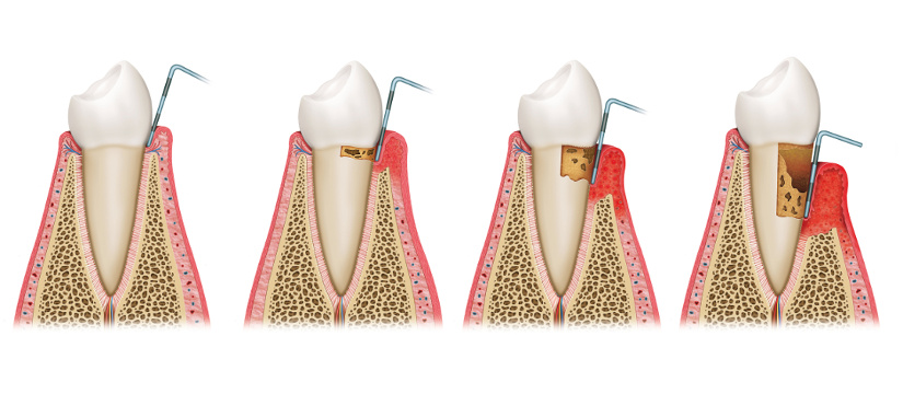 parodontologie servicii 2